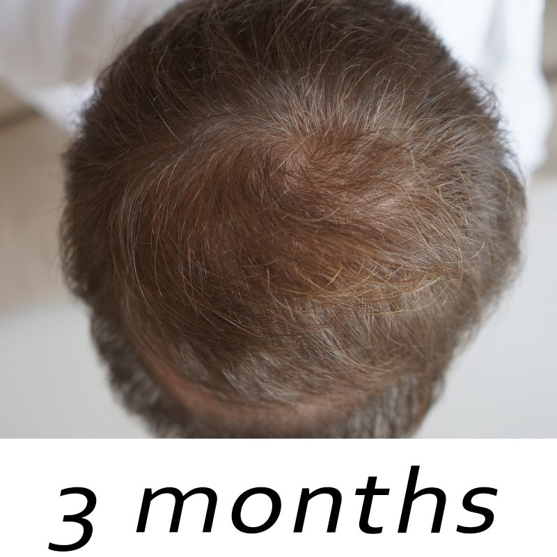 topical finasteride before and after 3 months