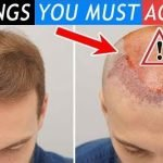 3 Things you must accept before your hair transplant!