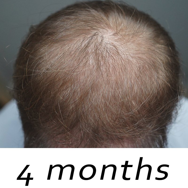 topical finasteride before and after 4 months