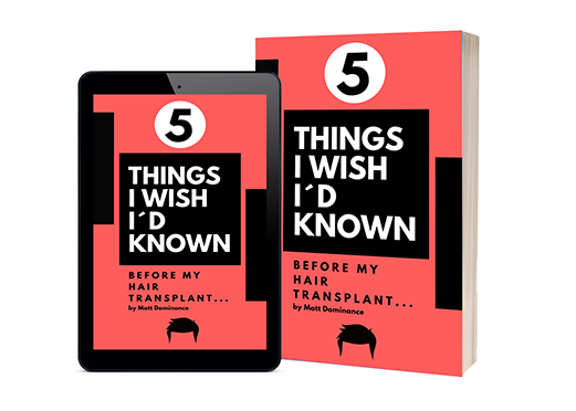 5 Things I wished I had known before my hair transplant
