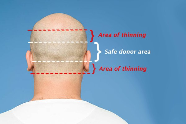 Hair Transplant donor area