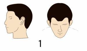 norwood 1 hair transplant cost