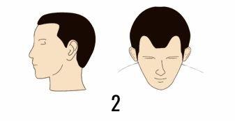 norwood 2 hair transplant cost