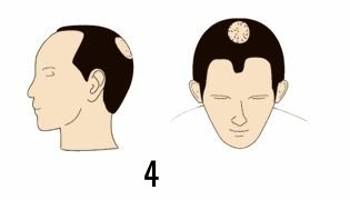 norwood 4 hair transplant cost