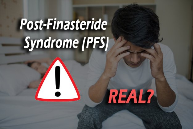 post-finasteride syndeome - Matt Dominance