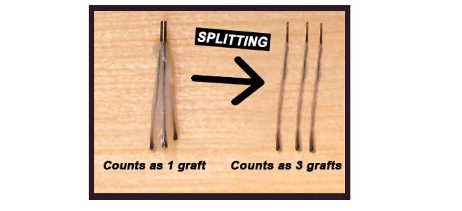 Graft Splitting by Hair Transplant in Turkey