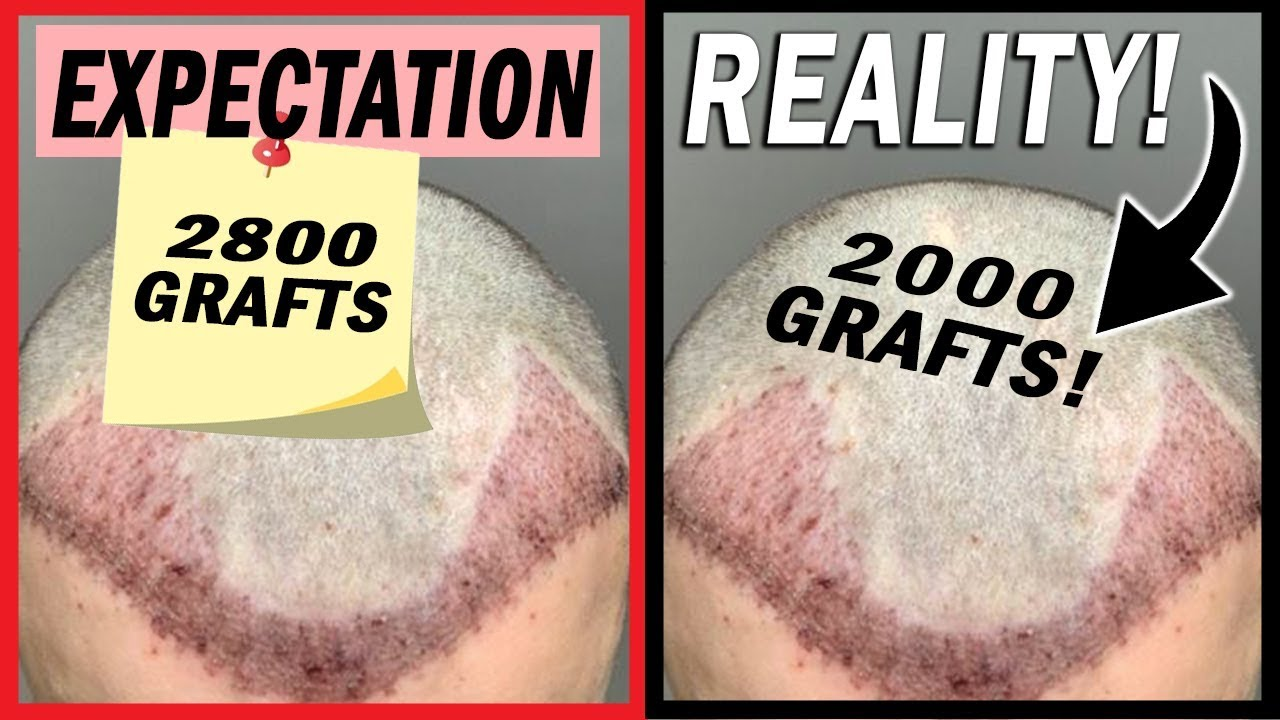 Implanted number of grafts looks less than promised