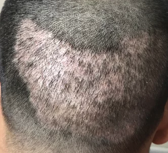 overharvested donor area FUE
