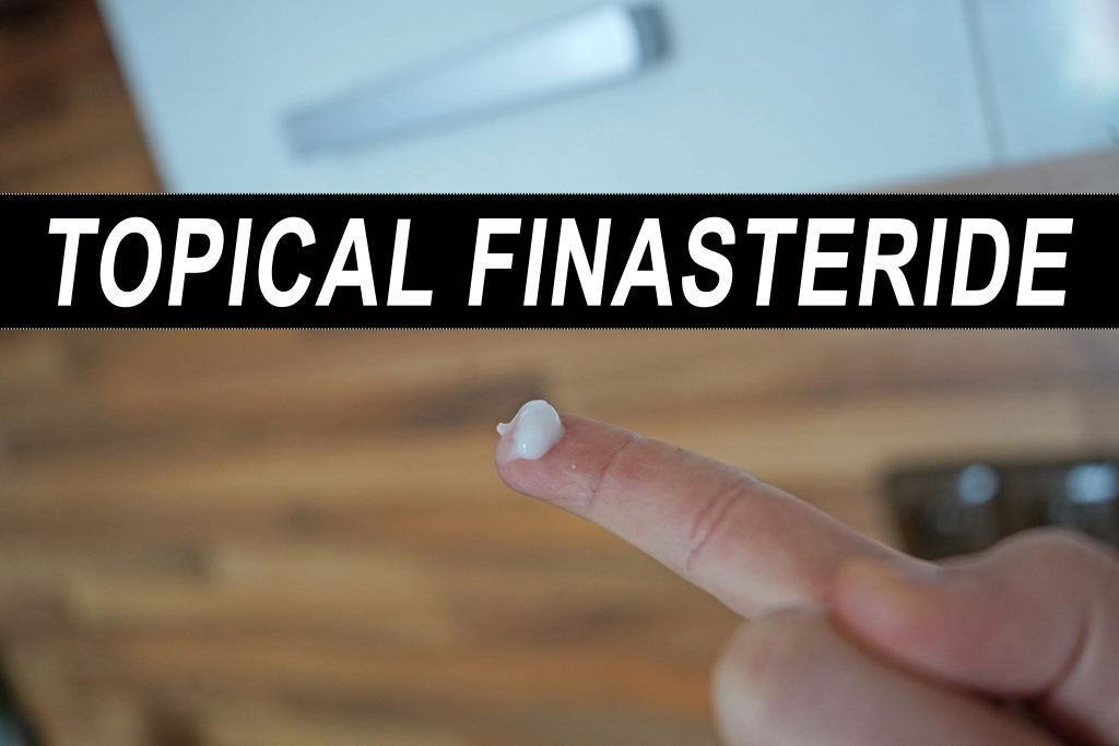 topical finasteride