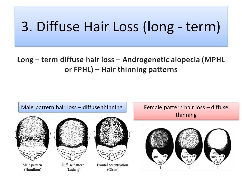 Diffuse Hair Loss Patterns