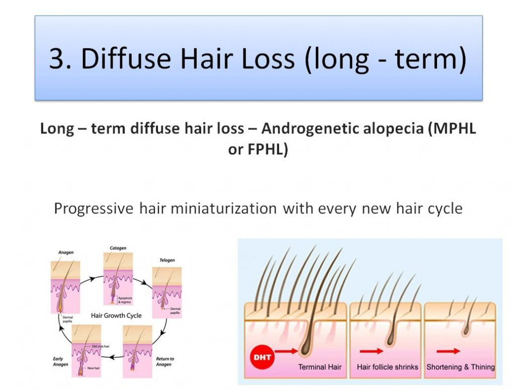 Diffuse Hair loss and permanent Hair Miniaturization