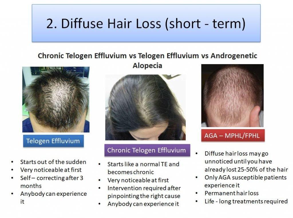 Short term vs long term hair loss difference