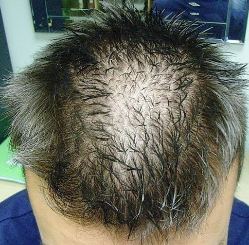 Diffuse Hair Loss in men and women