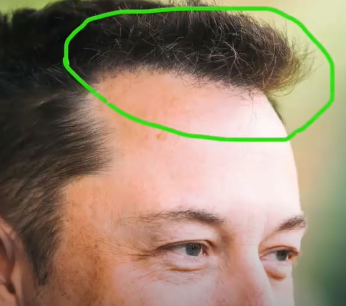 Elon Musk Hair Transplant History and Hair Analysis before and after