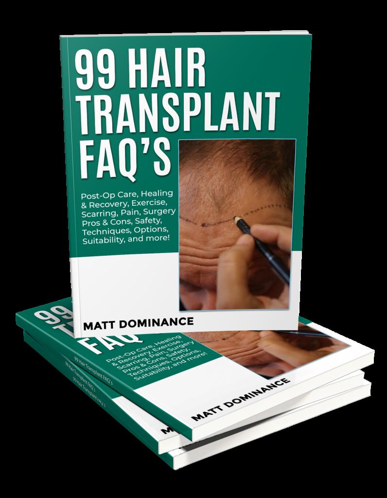 99 hair transplant FAQ´s