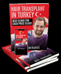 Best-Hair-Transplant-In-Turkey-Matt-Dominance-1