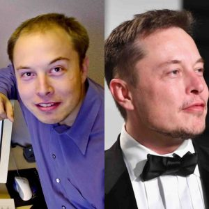 Elon Musk Hair Transplant Breakdown