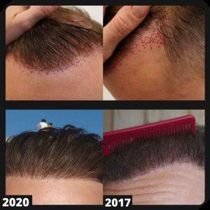 my hairline repair