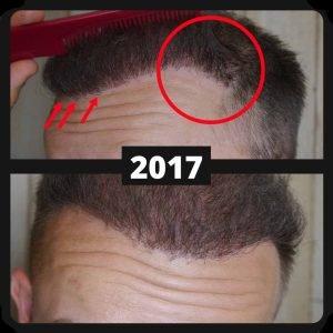 old hairline