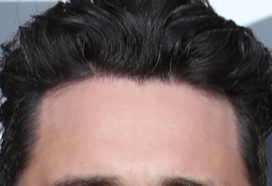James Franco new hairline and temples