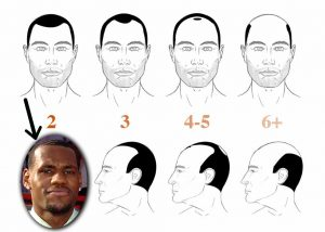 Lebron James Hair Loss - Norwood 2