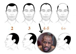 Lebron James Hair Loss - Norwood 4