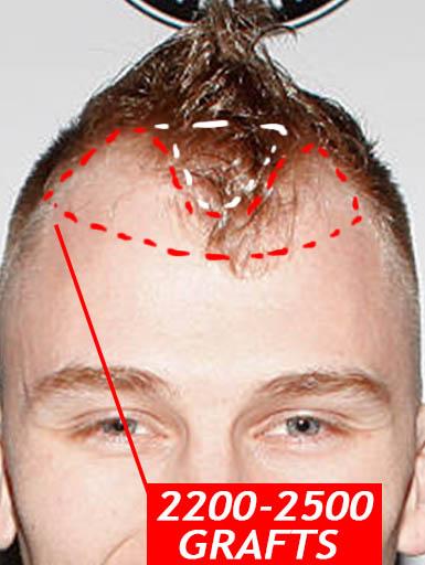 MACHINE GUN KELLY FUT hair transplant details