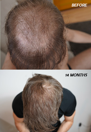 My Finasteride Results - 14 months after using finasteride + hair transplant