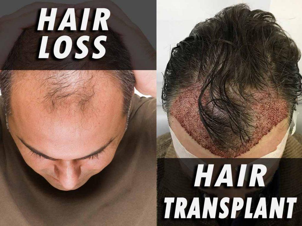 hair loss and hair transplant blog