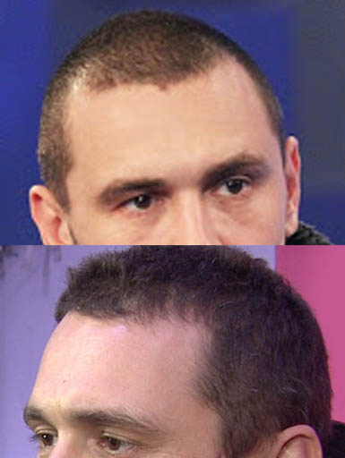 james franco buzz cut hair loss