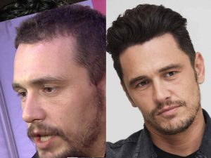 james franco hair transplant before and after