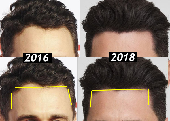 james franco hair transplant before and after hairline
