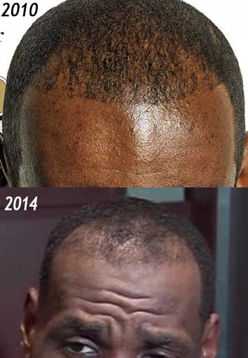 lebron james hair loss progression 2010-2014