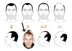 machine gun kelly hair loss
