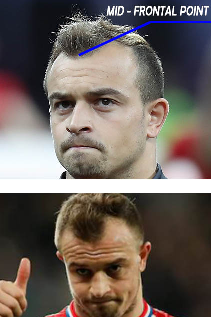 shaqiri before hair transplant