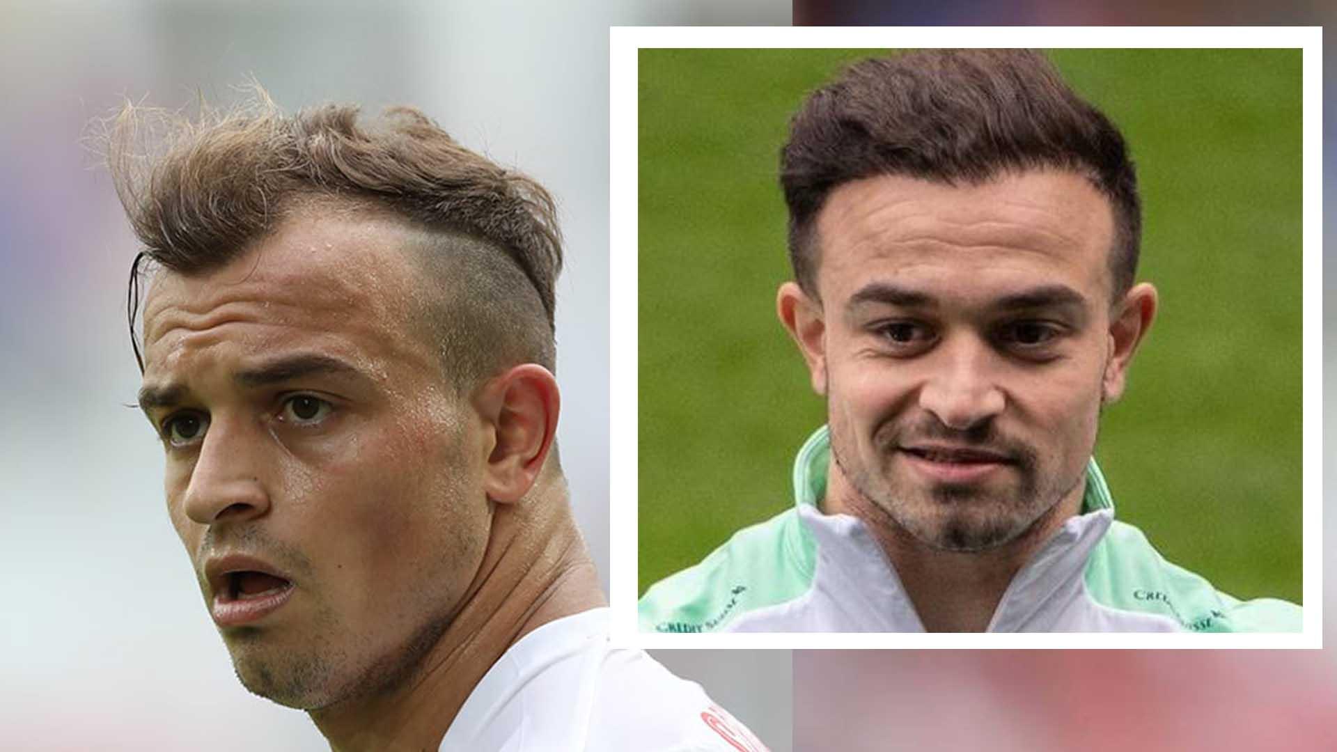 Xherdan Shaqiri Hair Transplant and Hair Analysis before and after