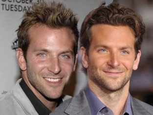 Bradley Cooper hair transplant before and after