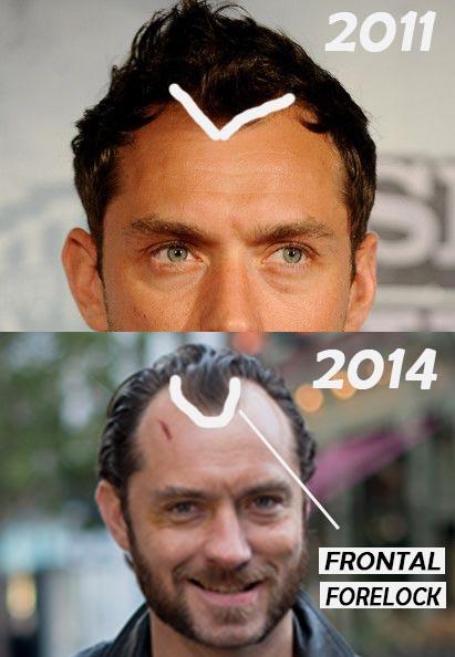 JUDE LAW HAIR LOSS PROGRESSION
