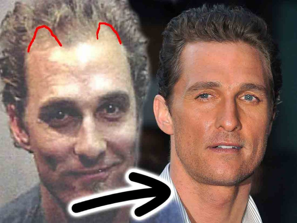 Matthew McConaughey - Hair Loss Secrets Revealed!
