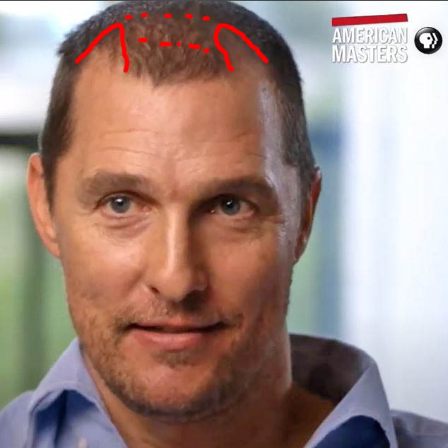Matthew McConaughey - Hair Loss Secrets