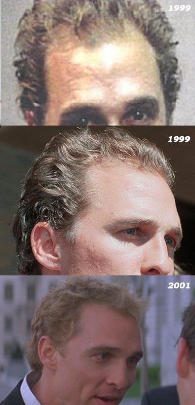 Matthew McConaughey Hair Loss
