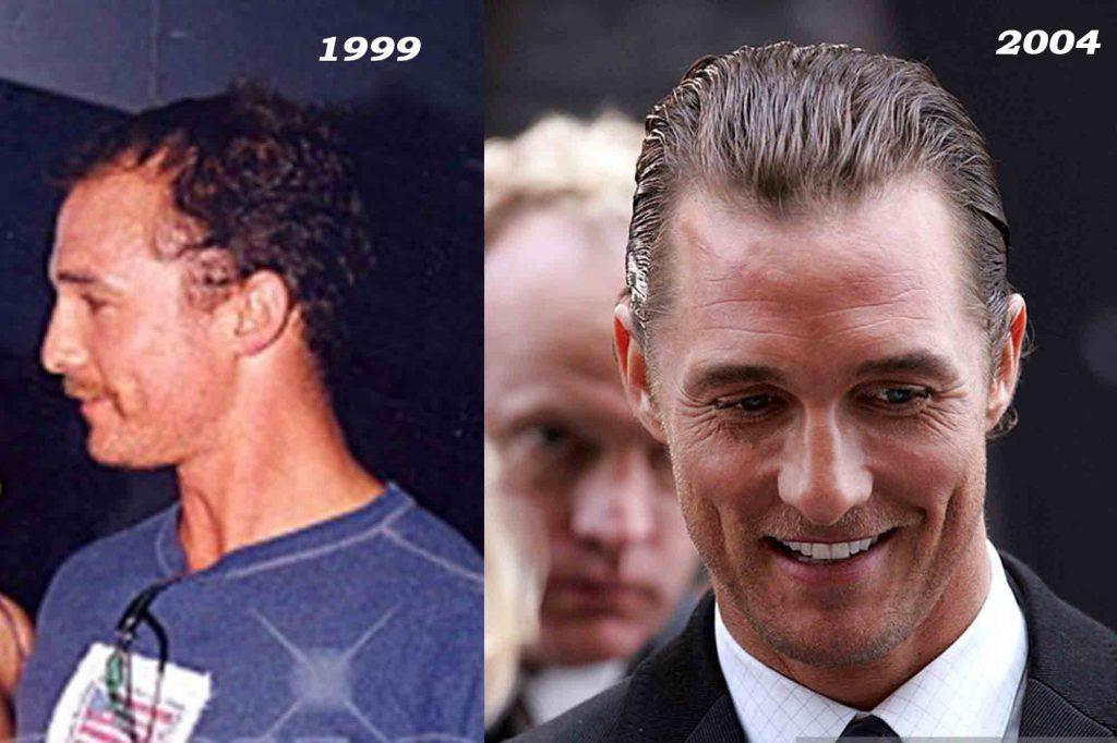 Matthew McConaughey Hair Transformation