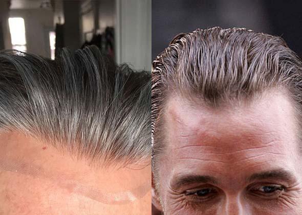 Matthew McConaughey Hairline vs Wig (2)