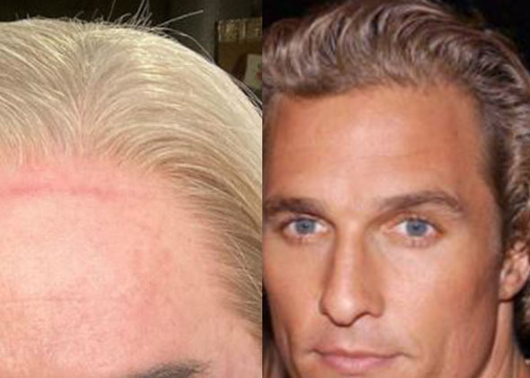 Matthew McConaughey Hairline vs Wig (3)