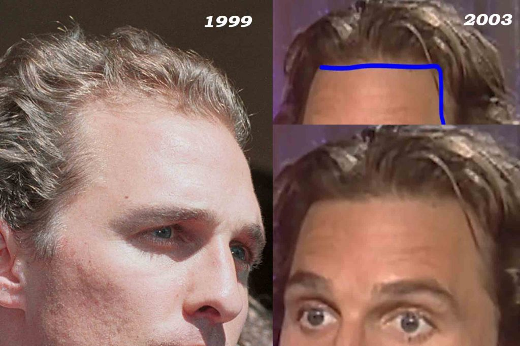 Matthew McConaughey before and after