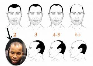 Tory Lanez hair loss