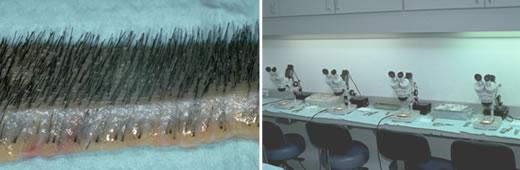 graft dissection Bernstein medical