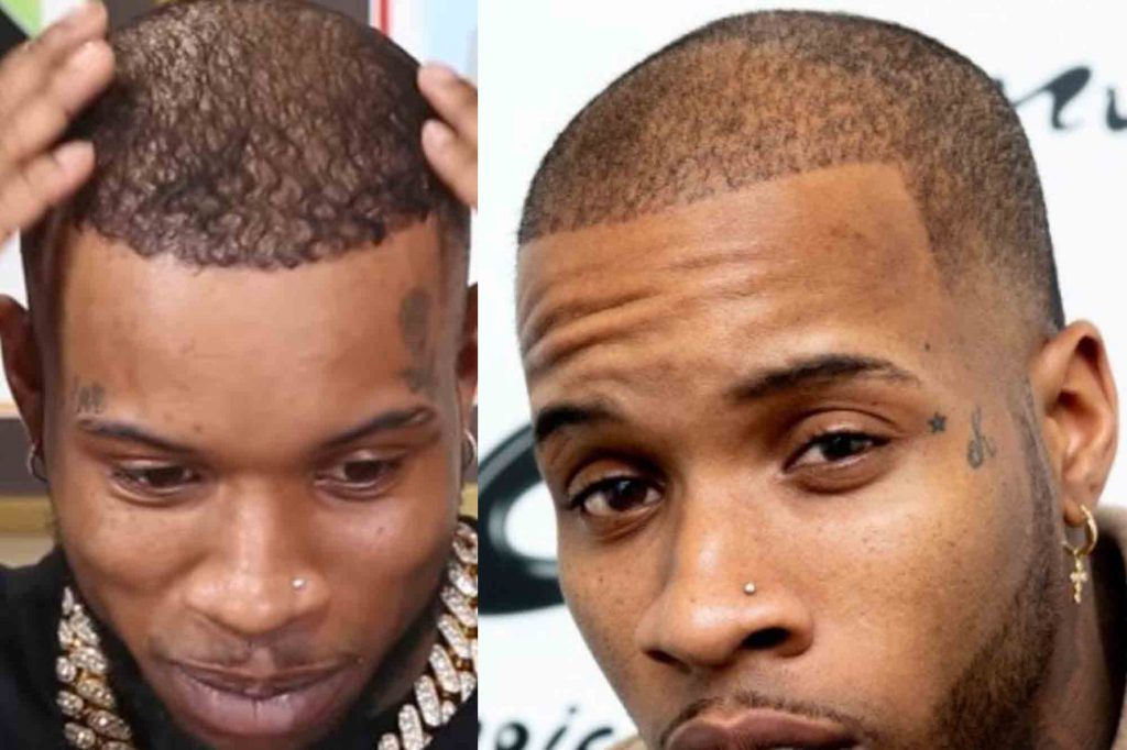 tory lanez hairline after hair transplant