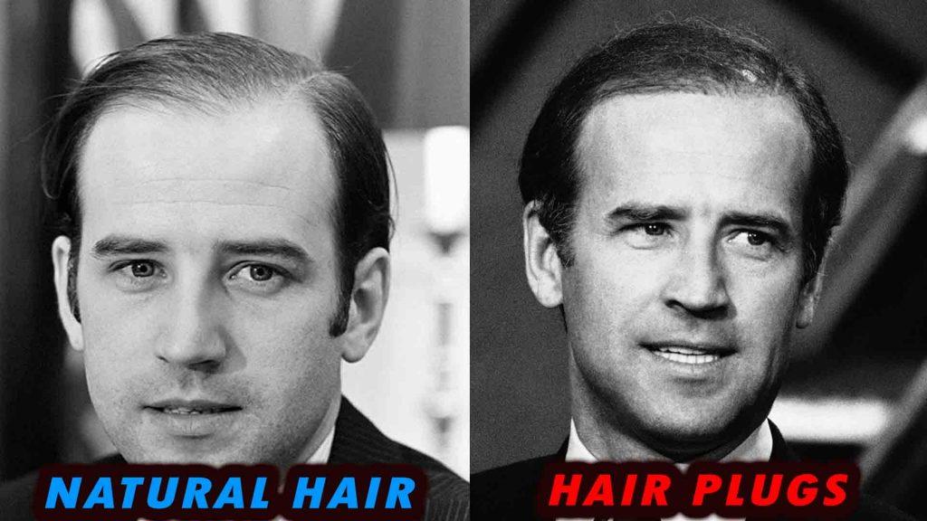 Joe Biden hair plugs vs receding hairline