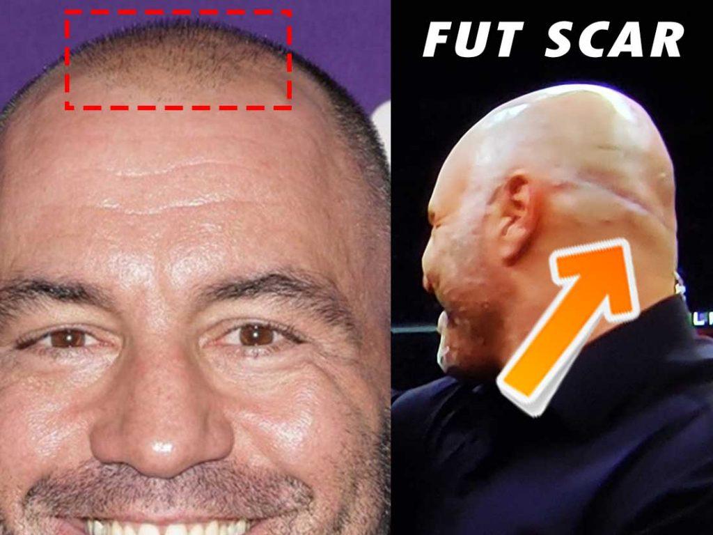 Joe Rogan FUT hair transplant